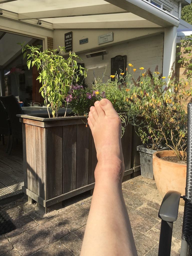 zes weken rust - herstellende enkel
